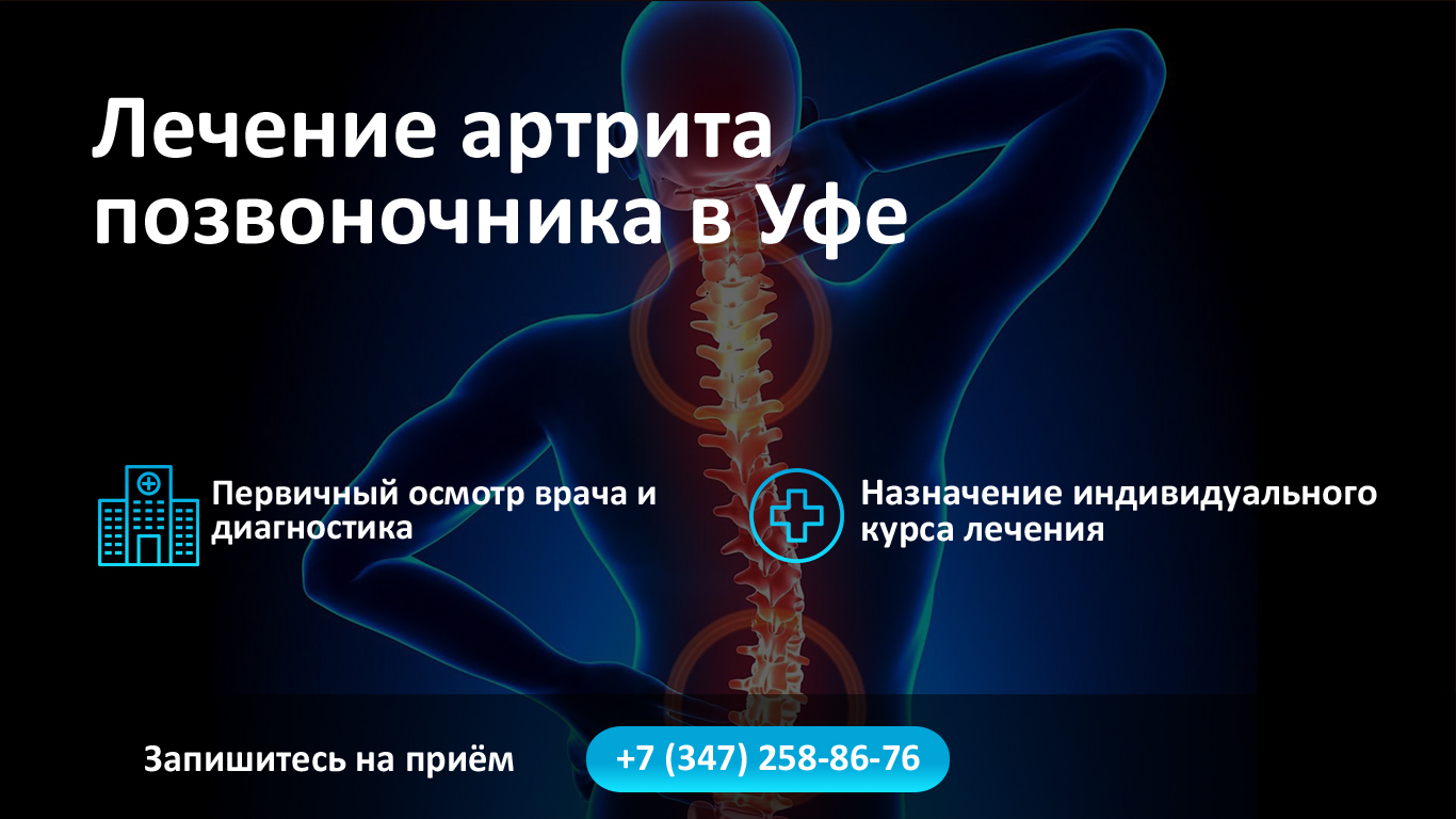 Лечение артрита позвоночника в Уфе фото