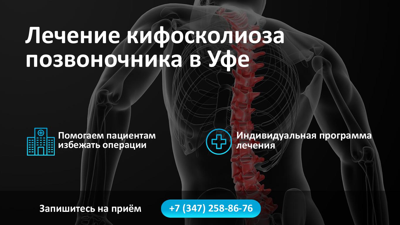 Лечение кифосколиоза позвоночника в Уфе фото
