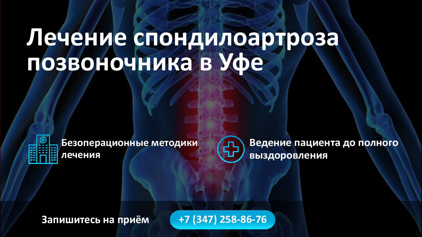 Лечение спондилоартроза позвоночника в Уфе фото