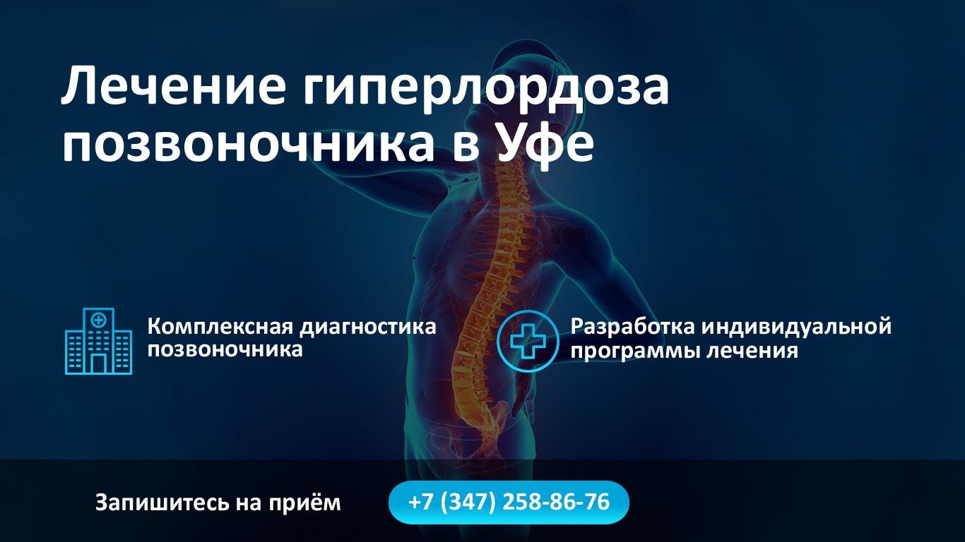 Лечение гиперлордоза позвоночника в Уфе фото