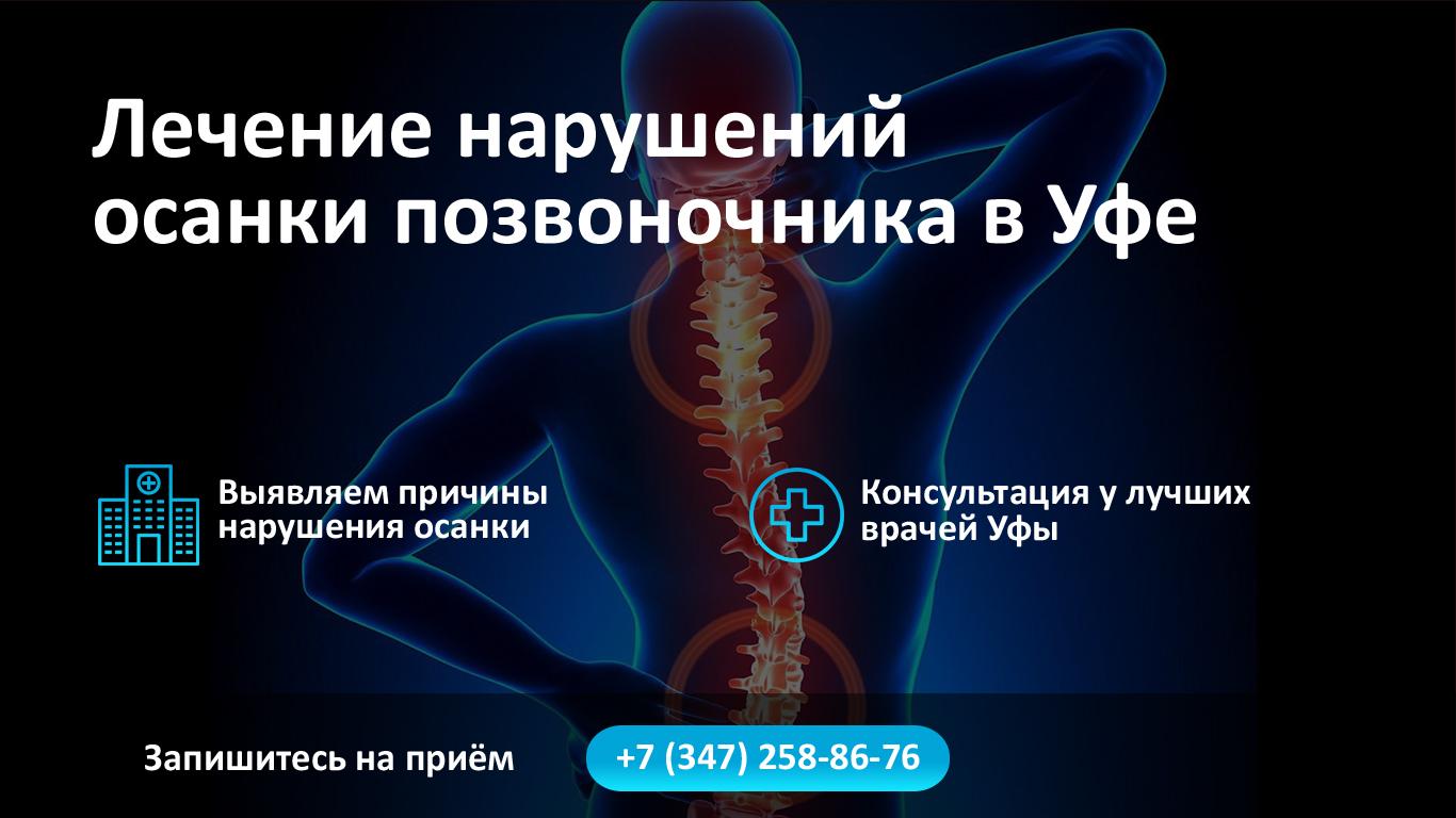 Лечение нарушений осанки позвоночника в Уфе фото