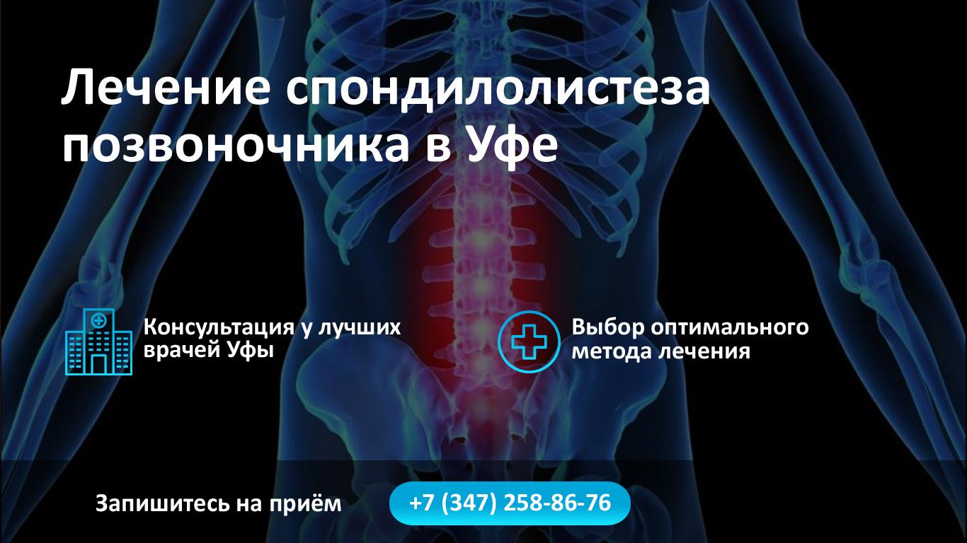 Лечение спондилолистеза позвоночника в Уфе фото