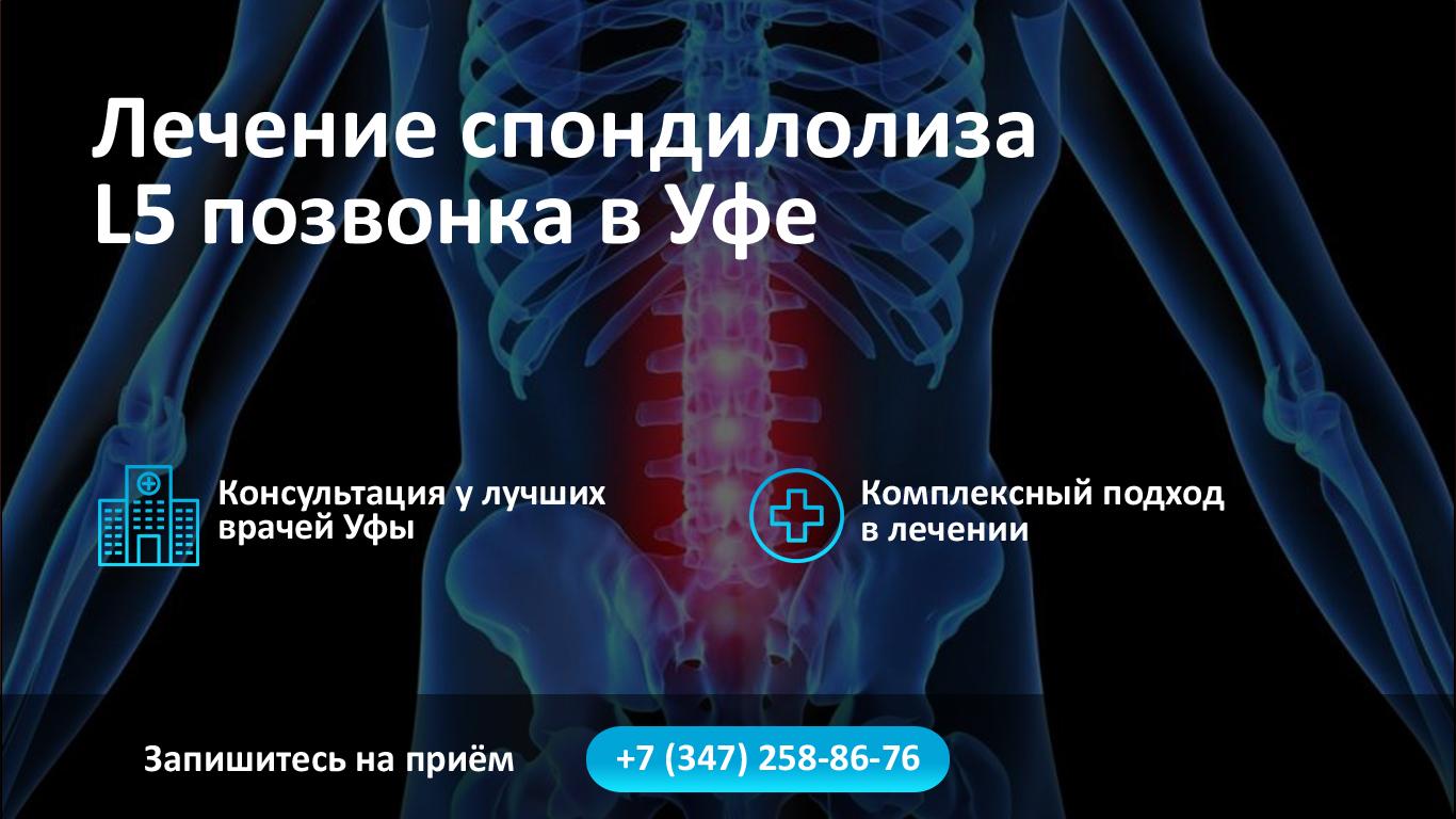Лечение спондилолиза L5 позвонка в Уфе фото
